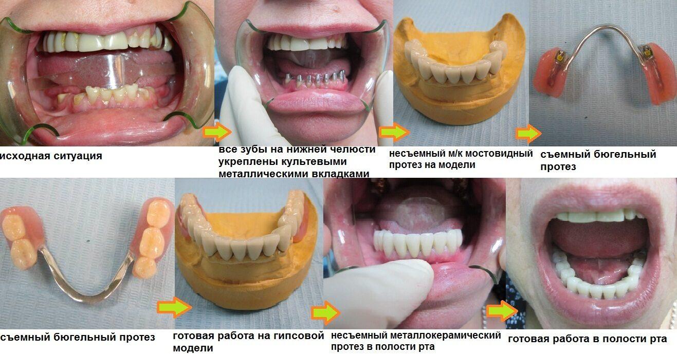 съемные протезы на задние зубы фото