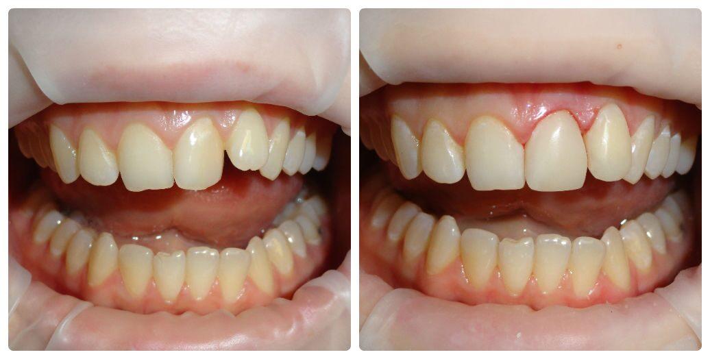 Не вырос один зуб в нижней челюсти