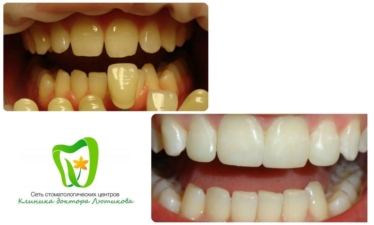 Crest отбеливания зубов