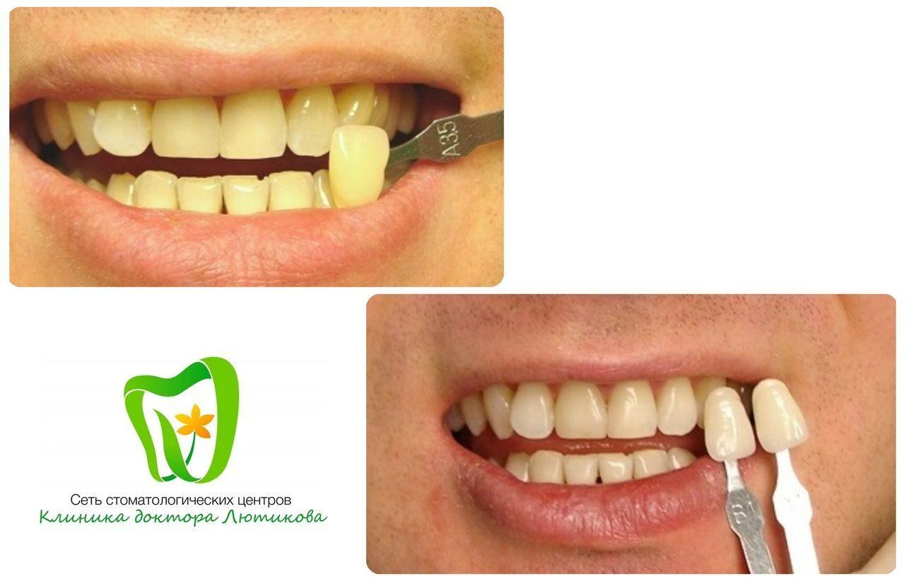 Как сделать чтобы были белые зубы