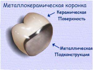structura_koronki-300x225