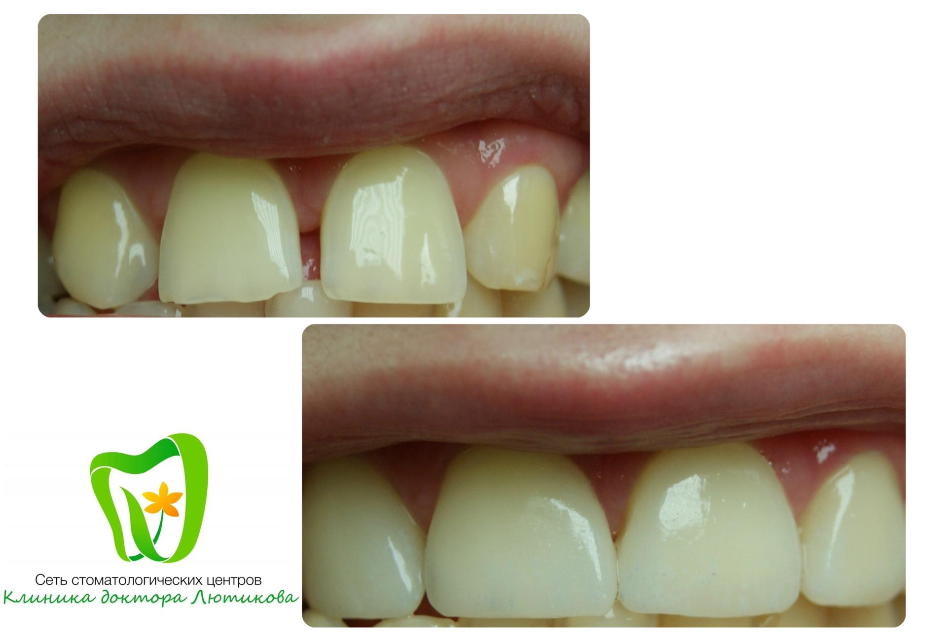 виниры протезирование зубов