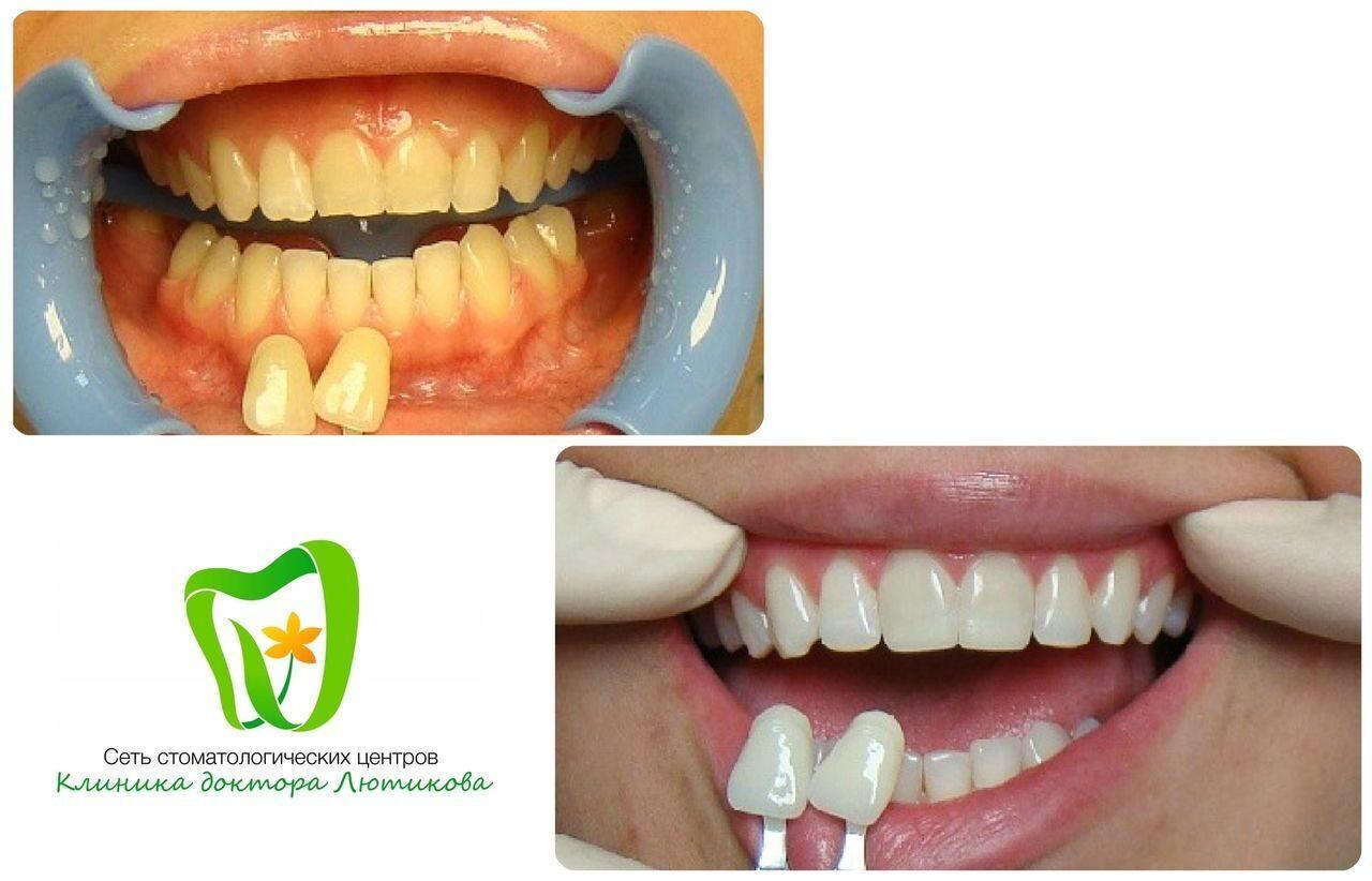 opalescence отбеливание зубов в домашних условиях